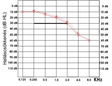 hogyan oszlik meg a magas vérnyomás