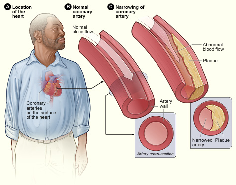 magas vérnyomás és koleszterin mit kell tenni
