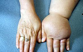 mi a 2 fokú magas vérnyomás 2 kockázata vaszkuláris hipertónia