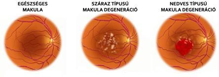 Makula degeneráció, Lehetséges-e a látás helyreállítása makula degenerációval?