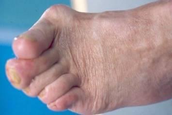 a nagy lábujj artrózisának kezelésére szolgáló készítmények