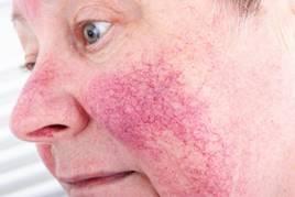 vörös foltok az arcon alkoholfogyasztás után