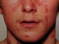 hogyan lehet gyorsan gyógyítani a pikkelysömör az arcon pelyhes vörös foltok a szemhéjon